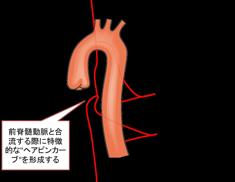 Adamkiewicz artery